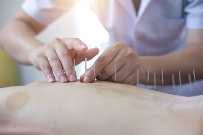 Chinese Acupuncturist Frederick Md