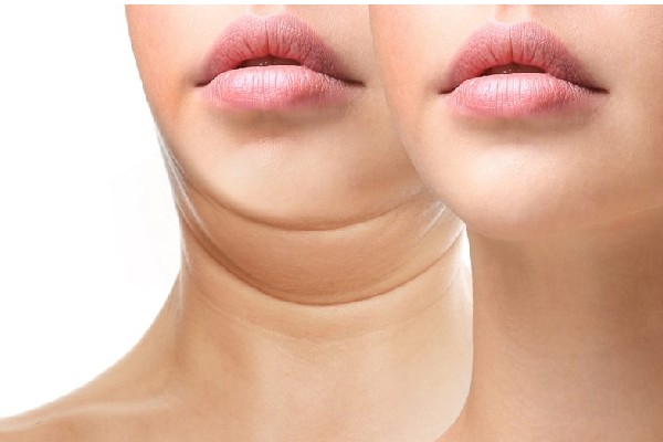 What All You Need To Know Before Going Through Neck Lift Surgery